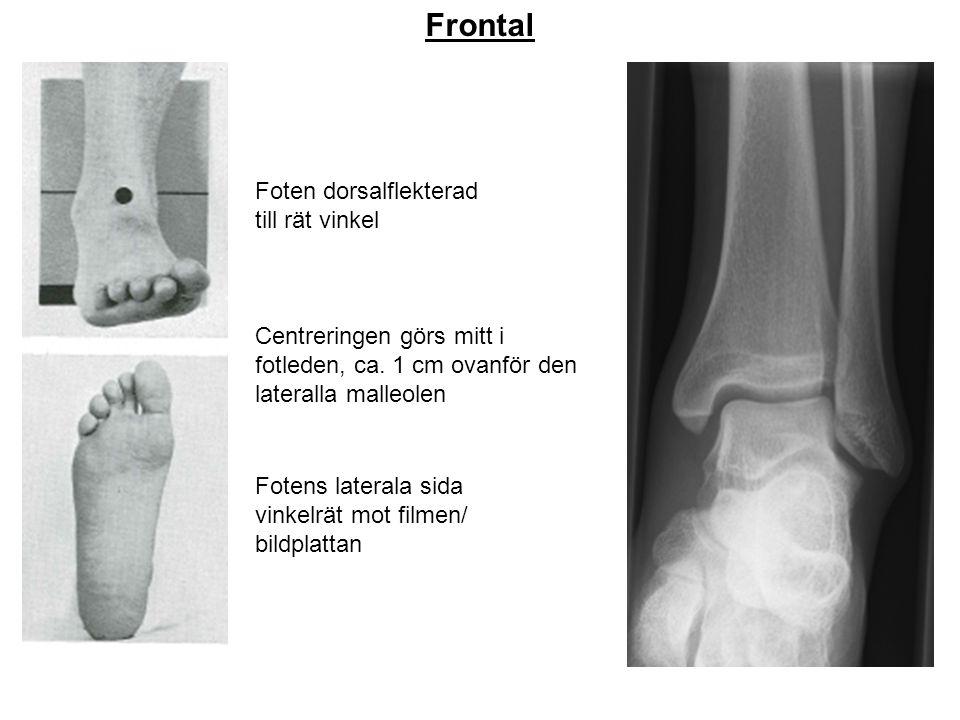 Frontal Foten dorsalflekterad till rät vinkel