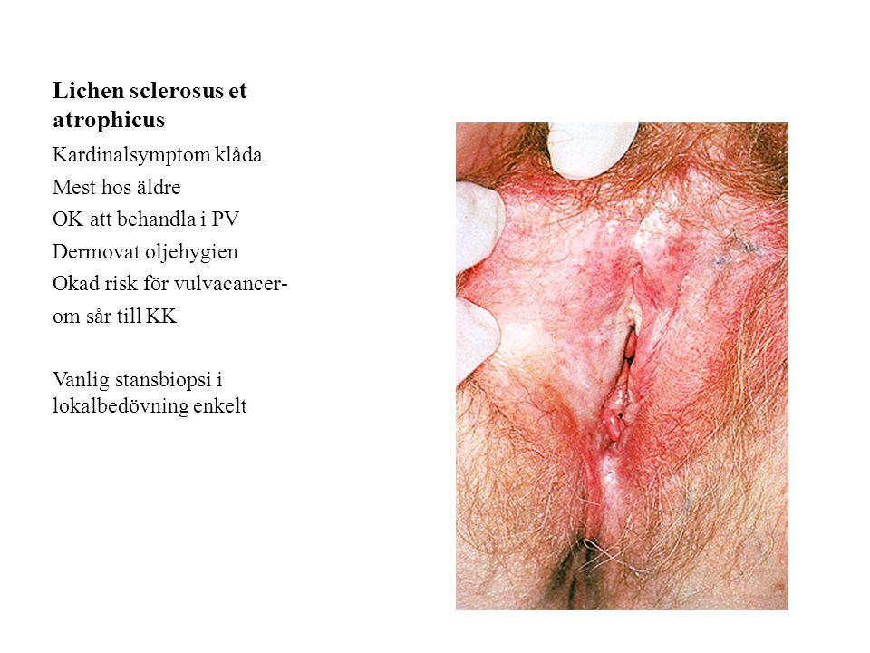 Lichen sclerosus et atrophicus