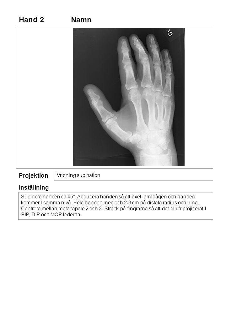 Hand 2 Namn Projektion Inställning Vridning supination
