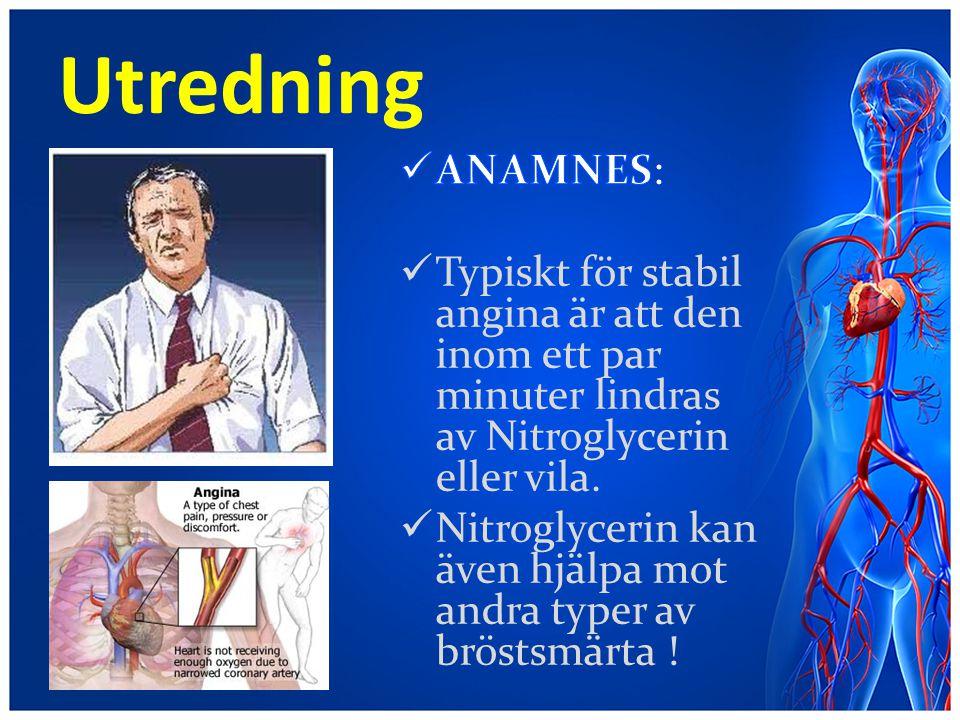 Utredning ANAMNES: Typiskt för stabil angina är att den inom ett par minuter lindras av Nitroglycerin eller vila.