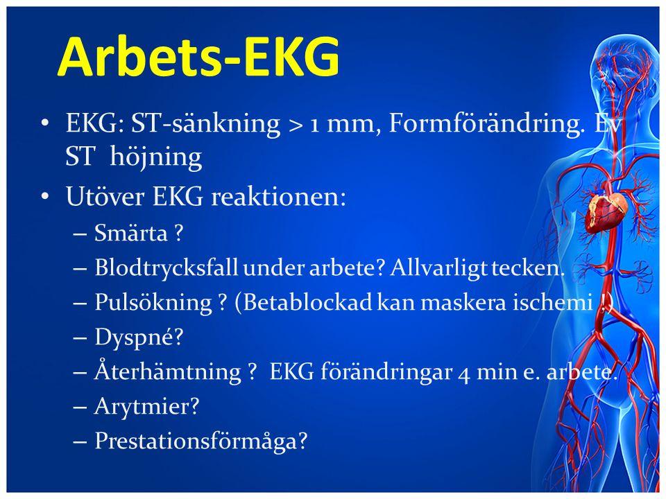 Arbets-EKG EKG: ST-sänkning > 1 mm, Formförändring. Ev ST höjning