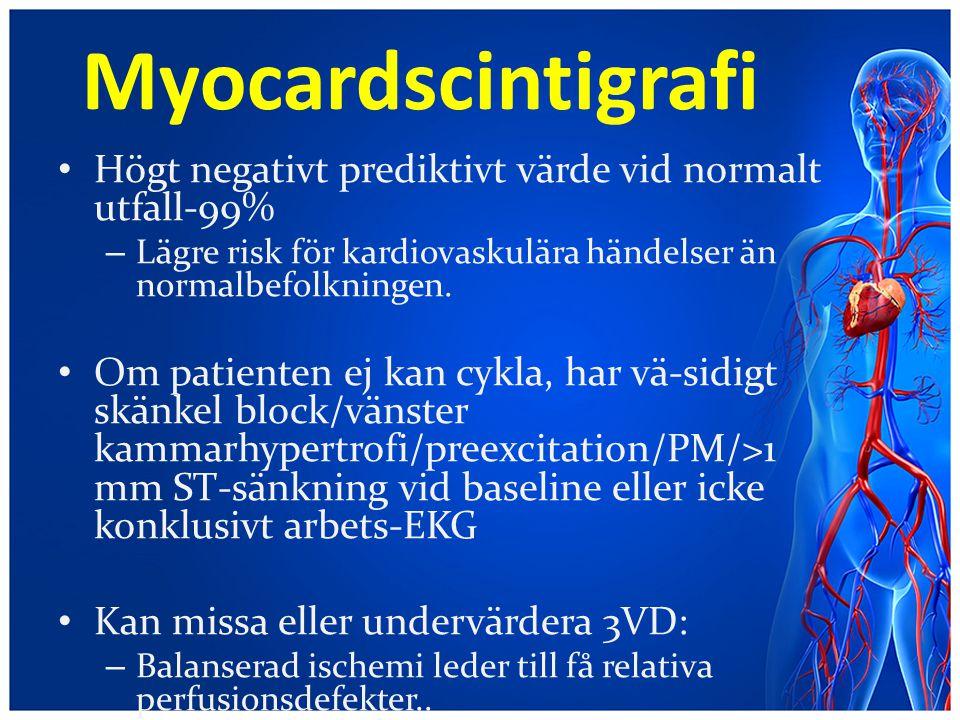 Myocardscintigrafi Högt negativt prediktivt värde vid normalt utfall-99% Lägre risk för kardiovaskulära händelser än normalbefolkningen.