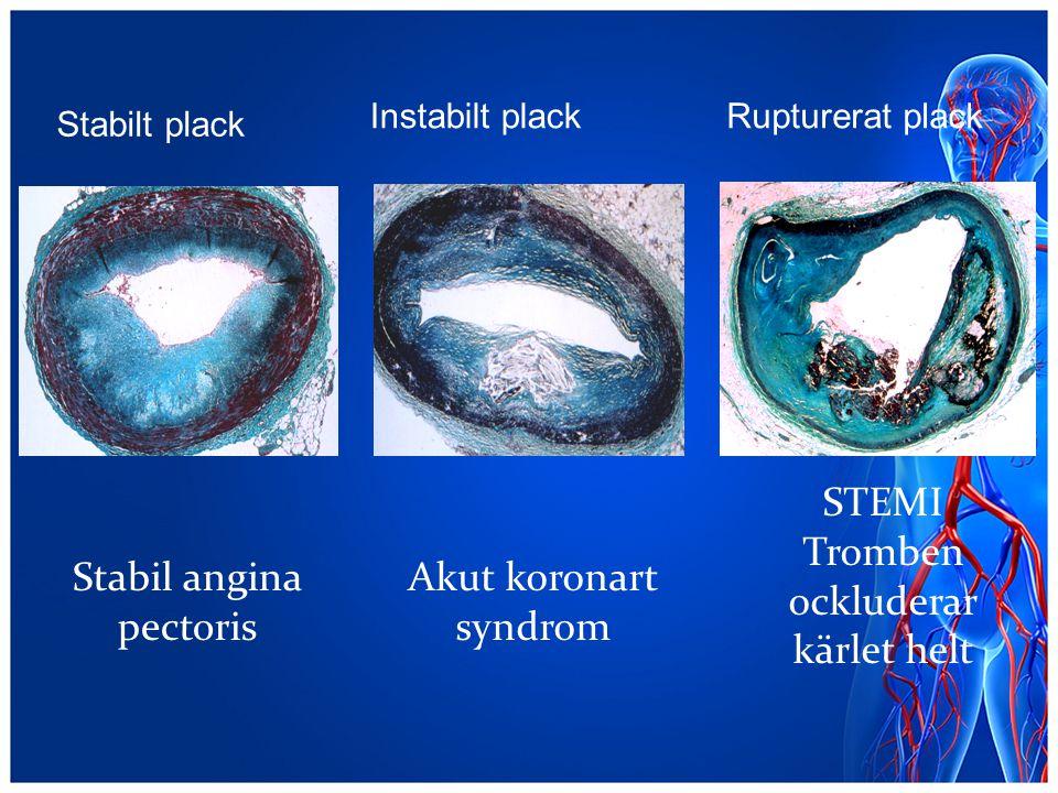 Tromben ockluderar kärlet helt Stabil angina pectoris