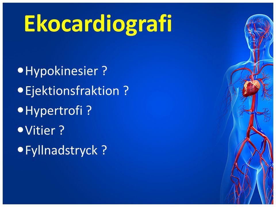 Ekocardiografi Hypokinesier Ejektionsfraktion Hypertrofi