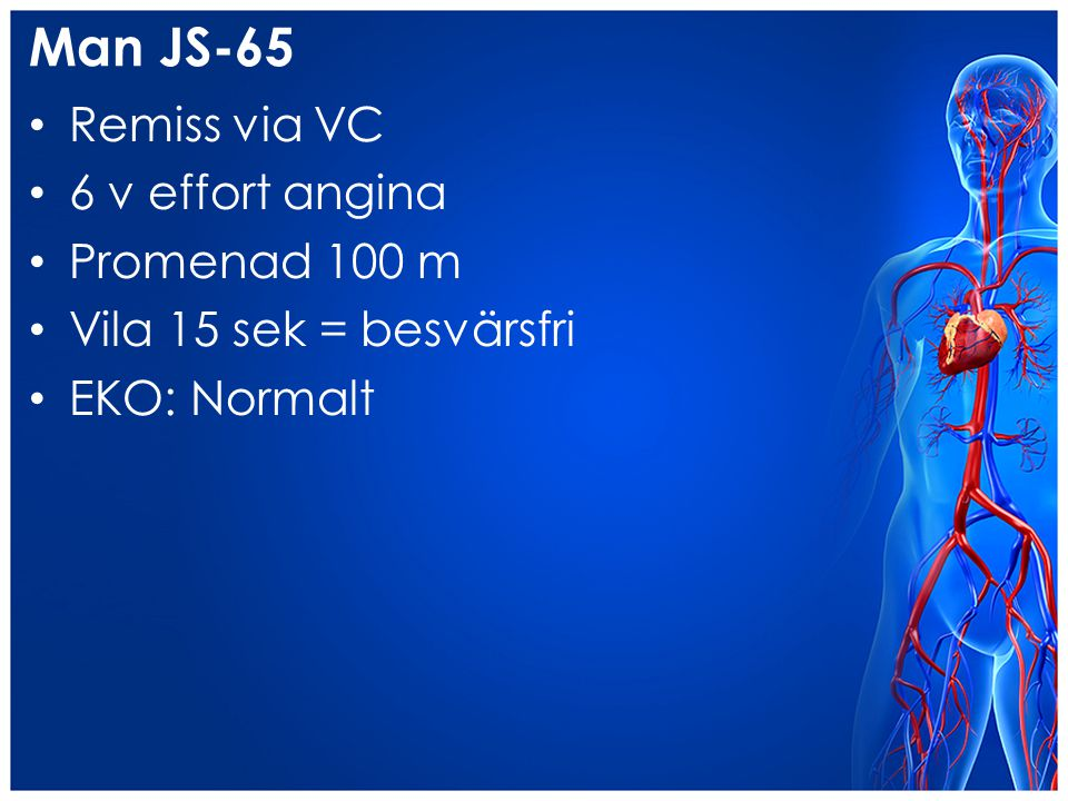 Man JS-65 Remiss via VC 6 v effort angina Promenad 100 m