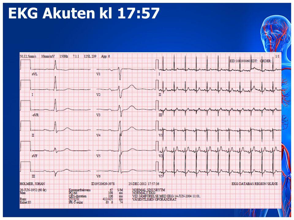 EKG Akuten kl 17:57