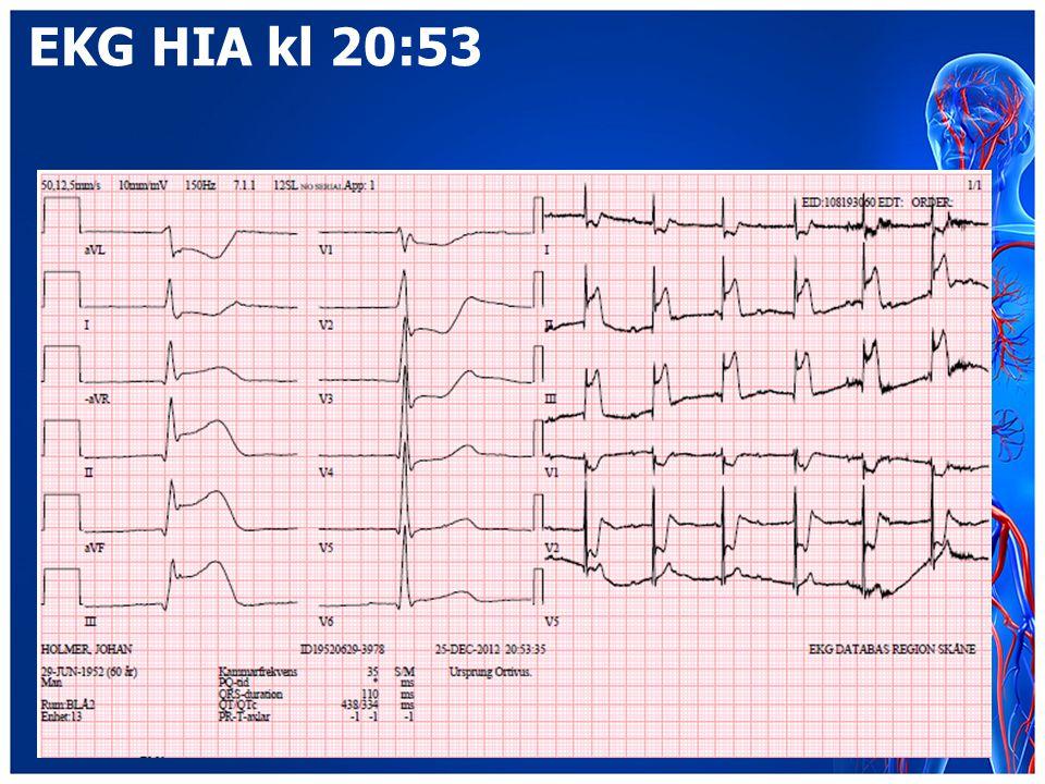 EKG HIA kl 20:53