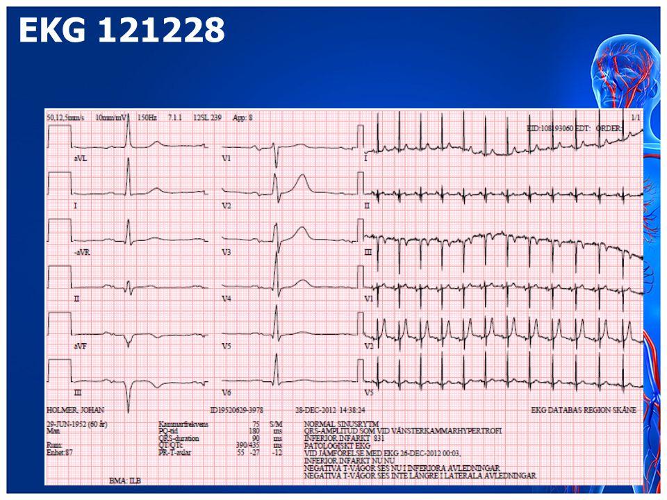 EKG 121228