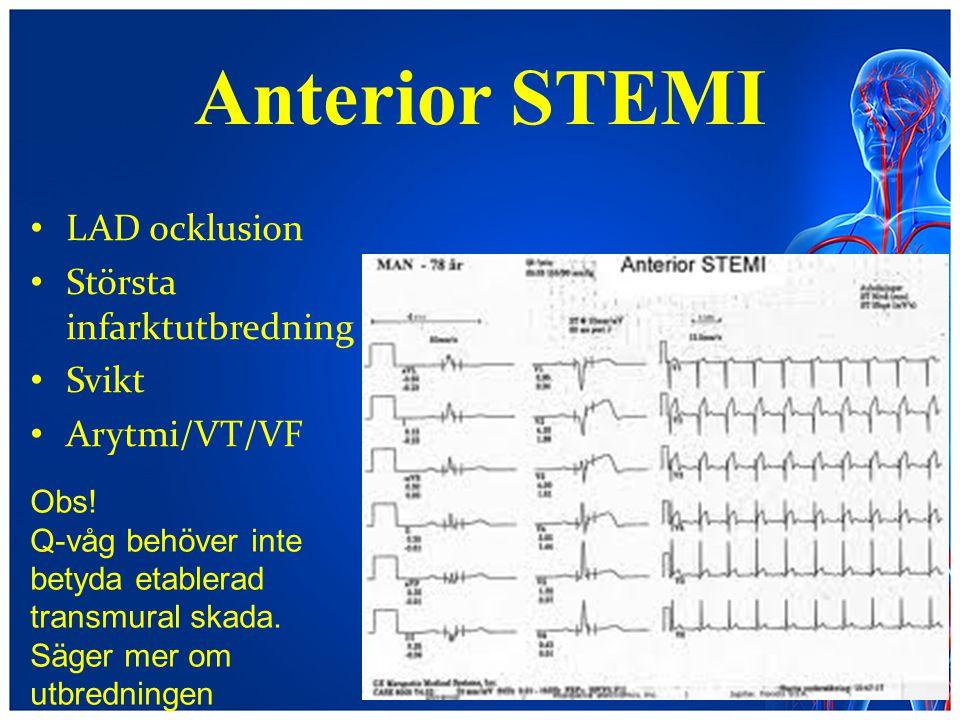 Anterior STEMI LAD ocklusion Största infarktutbredning Svikt