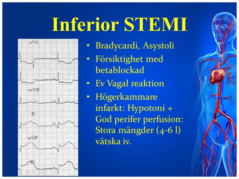 Inferior STEMI Bradycardi, Asystoli Försiktighet med betablockad