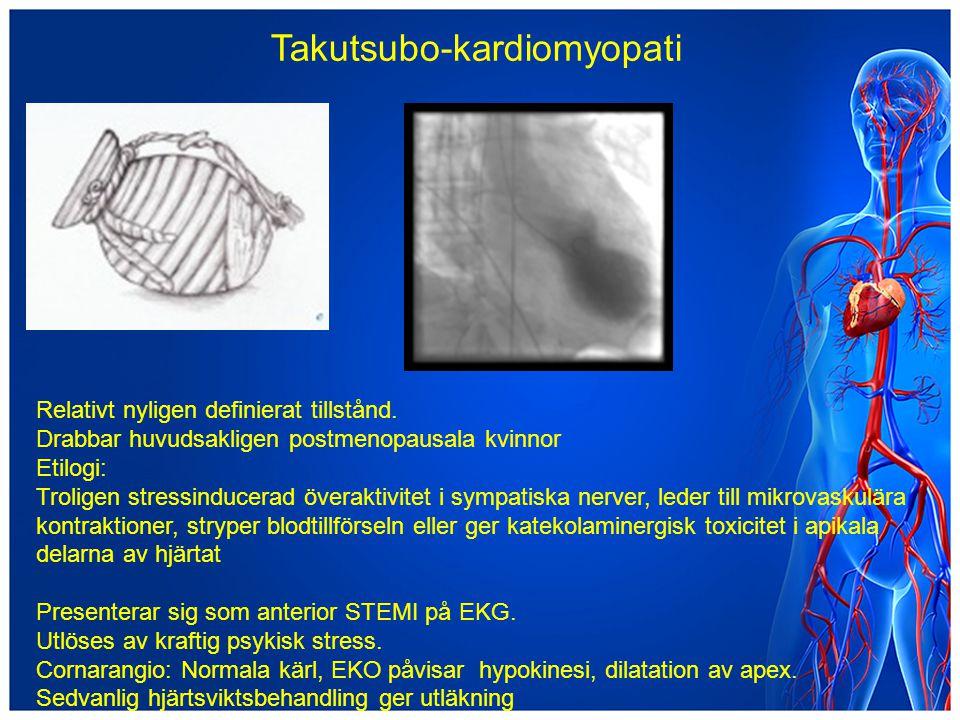 Takutsubo-kardiomyopati