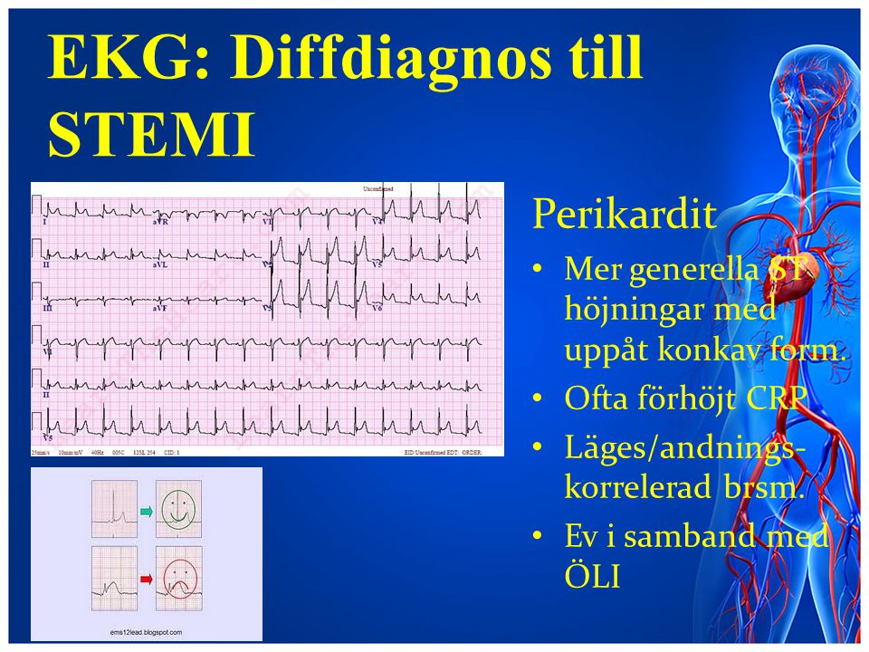 EKG: Diffdiagnos till STEMI