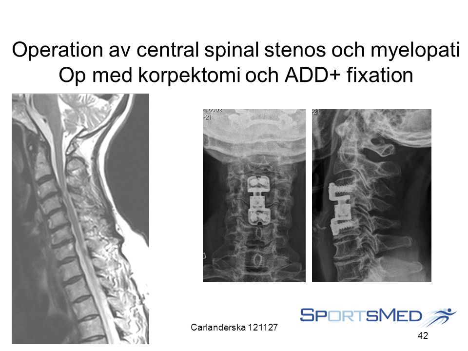 Operation av central spinal stenos och myelopati Op med korpektomi och ADD+ fixation