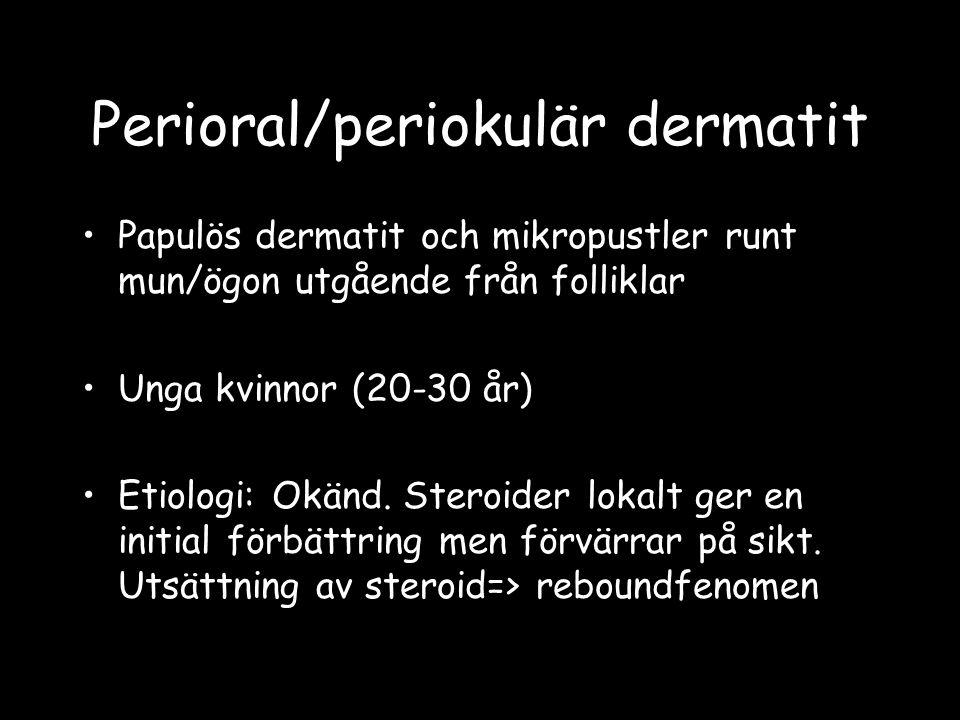 Perioral/periokulär dermatit
