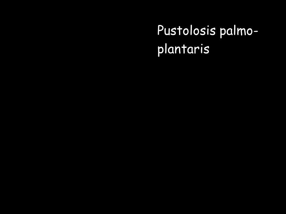 Pustolosis palmo- plantaris