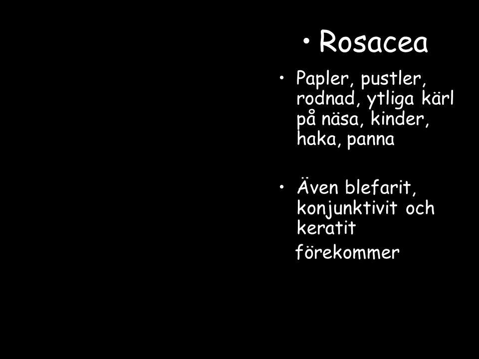 Rosacea Papler, pustler, rodnad, ytliga kärl på näsa, kinder, haka, panna. Även blefarit, konjunktivit och keratit.