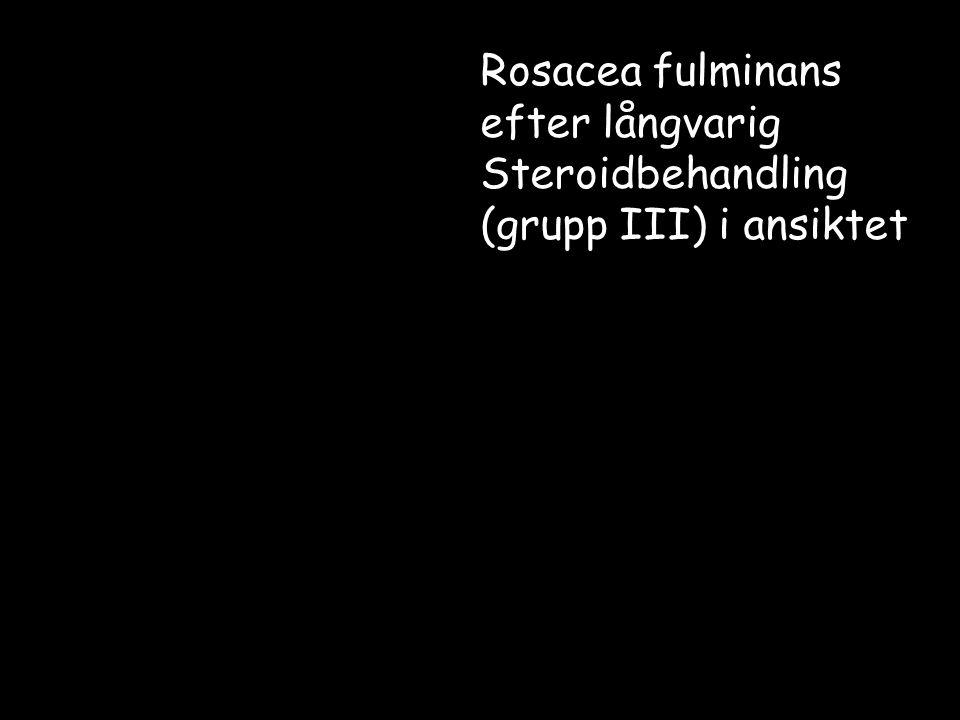 Rosacea fulminans efter långvarig Steroidbehandling
