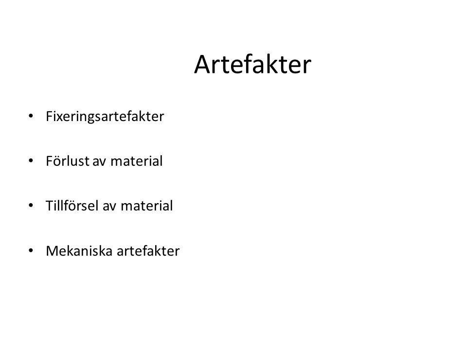 Artefakter Fixeringsartefakter Förlust av material