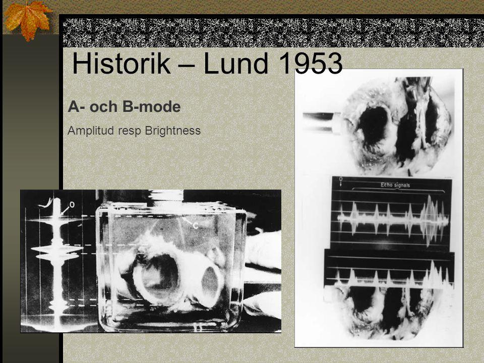 Historik – Lund 1953 A- och B-mode Amplitud resp Brightness