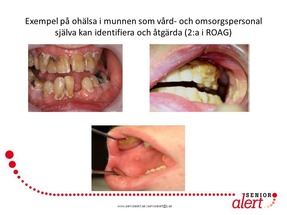 Exempel på ohälsa i munnen som vård- och omsorgspersonal själva kan identifiera och åtgärda (2:a i ROAG)