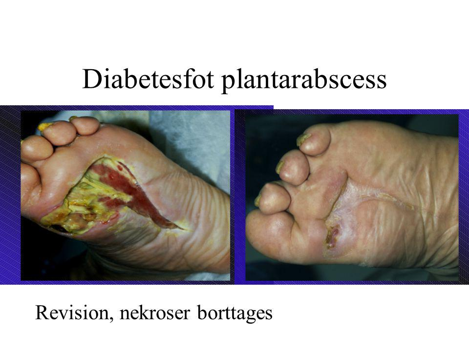 Diabetesfot plantarabscess