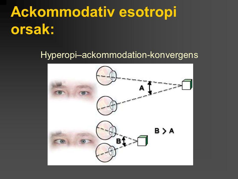Ackommodativ esotropi orsak: