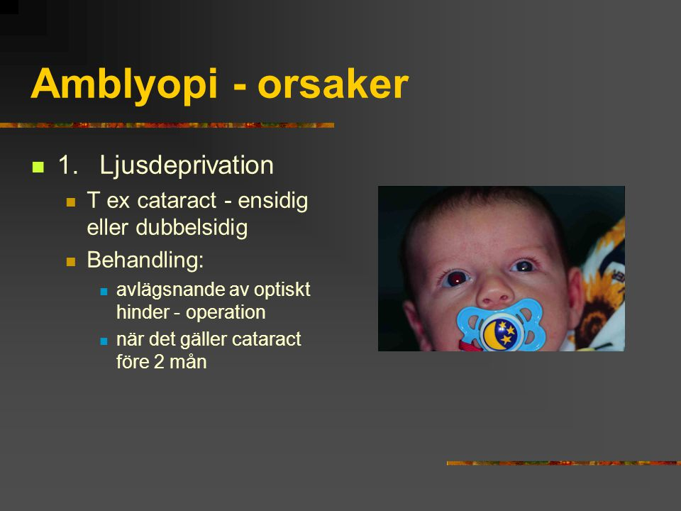 Amblyopi - orsaker 1. Ljusdeprivation