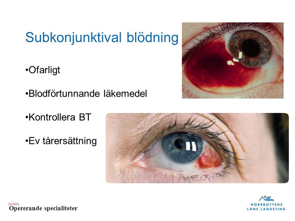 Subkonjunktival blödning