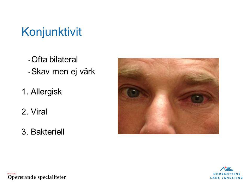 Konjunktivit Ofta bilateral Skav men ej värk Allergisk Viral