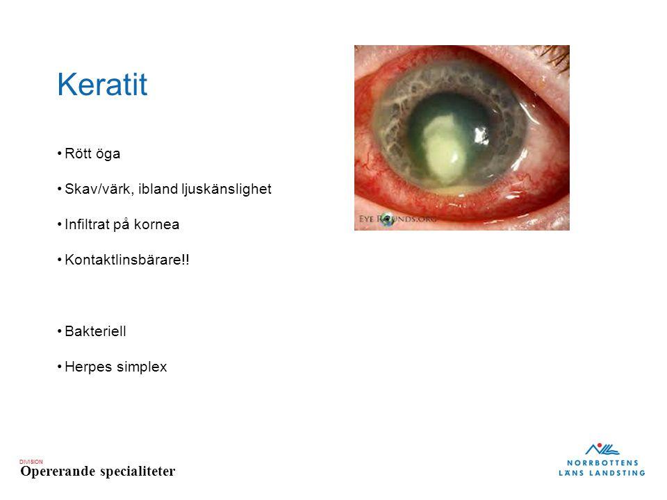 Keratit Rött öga Skav/värk, ibland ljuskänslighet Infiltrat på kornea