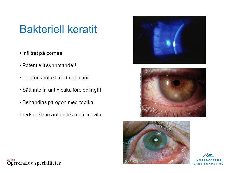 Bakteriell keratit Infiltrat på cornea Potentiellt synhotande!!