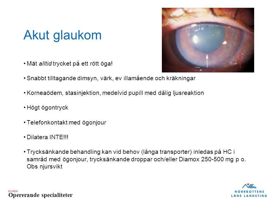 Akut glaukom Mät alltid trycket på ett rött öga!