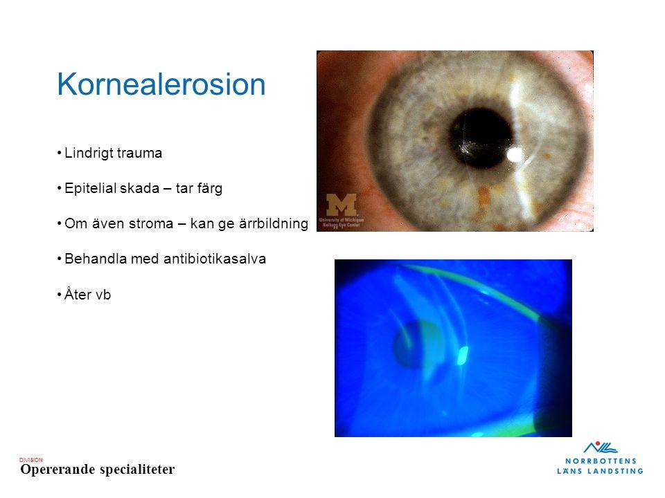 Kornealerosion Lindrigt trauma Epitelial skada – tar färg