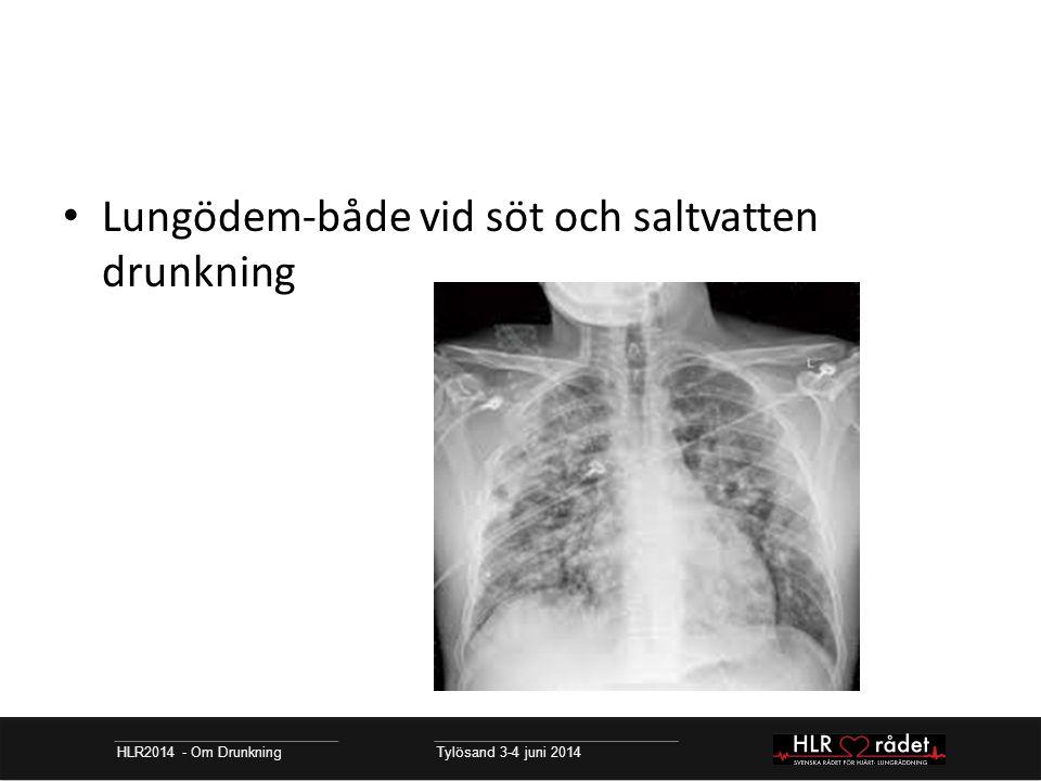 Lungödem-både vid söt och saltvatten drunkning