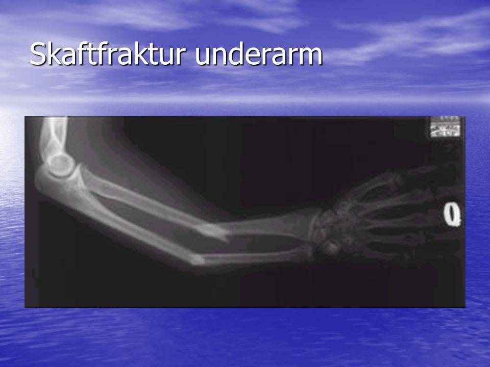 Skaftfraktur underarm