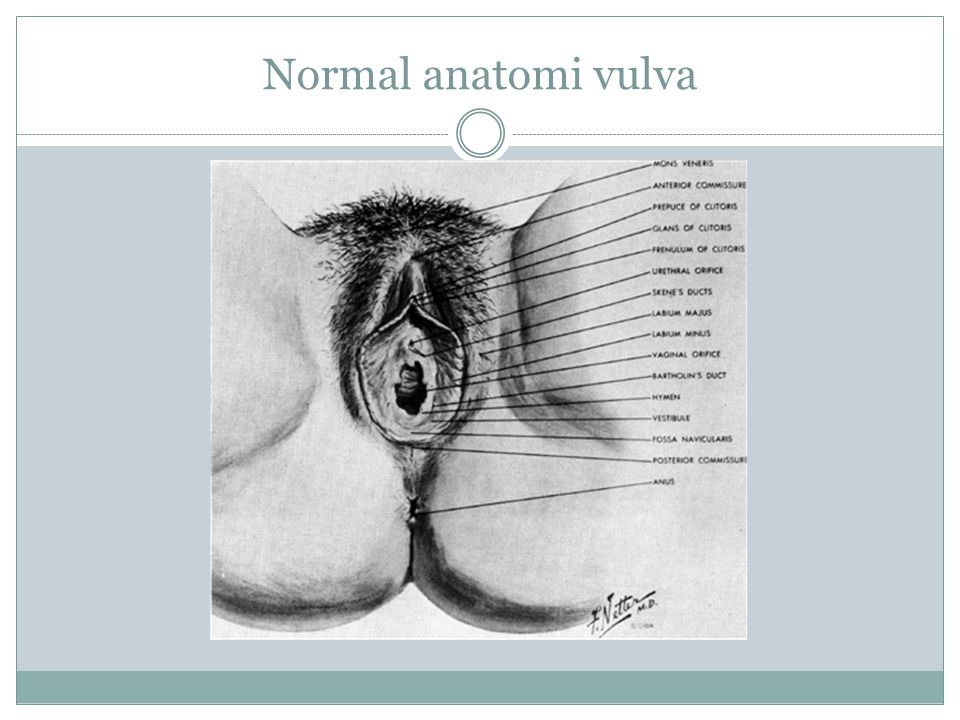 Normal anatomi vulva