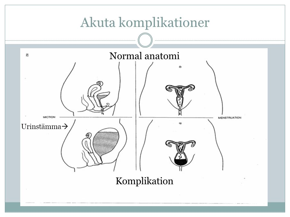 Akuta komplikationer Normal anatomi Urinstämma Komplikation