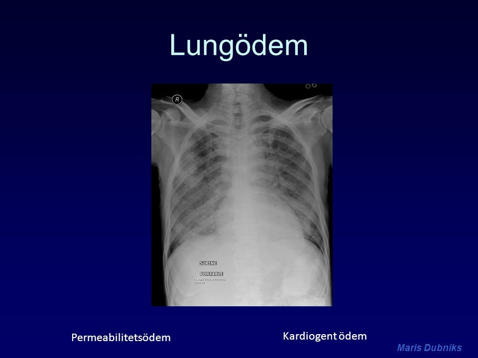 Lungödem Permeabilitetsödem Kardiogent ödem