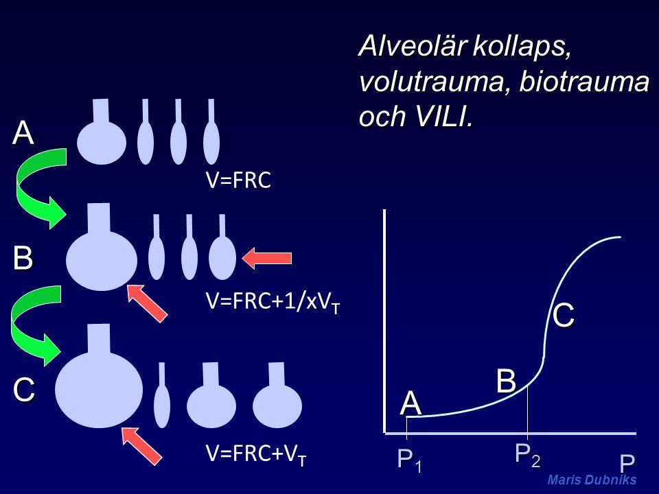 A B C B C A Alveolär kollaps, volutrauma, biotrauma och VILI. V=FRC