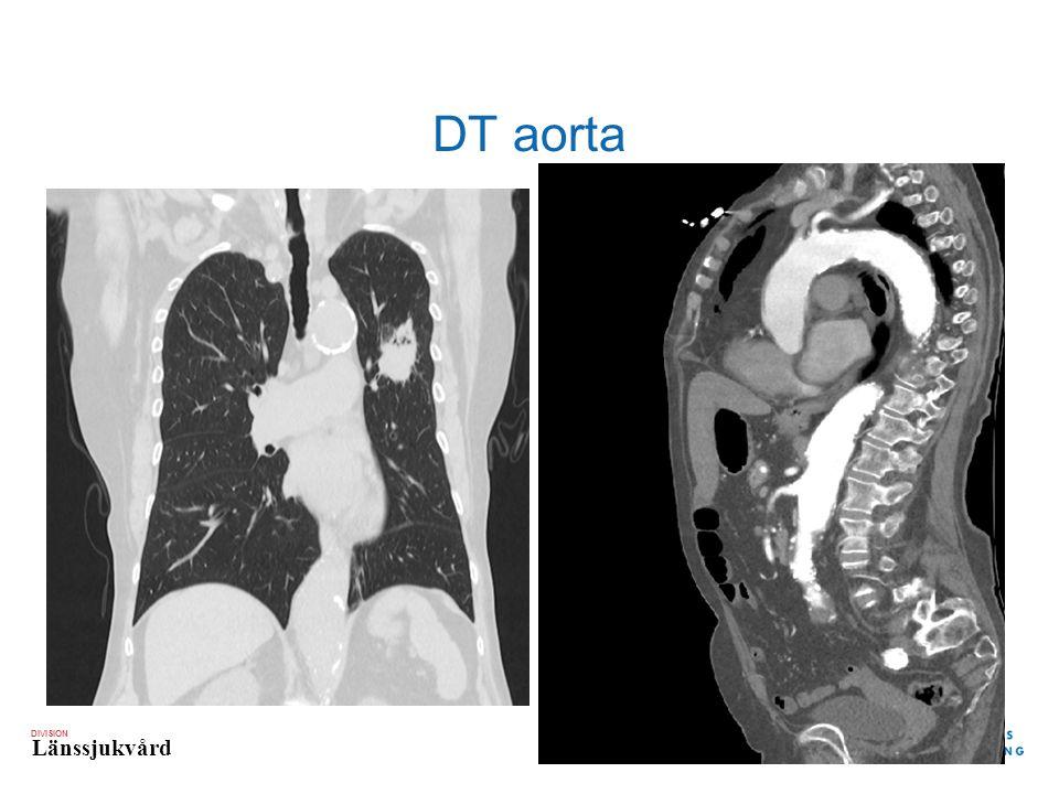 DT aorta
