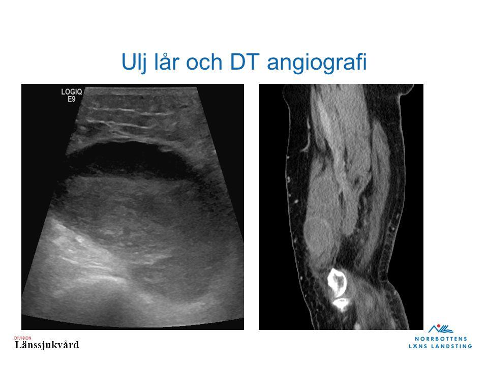 Ulj lår och DT angiografi