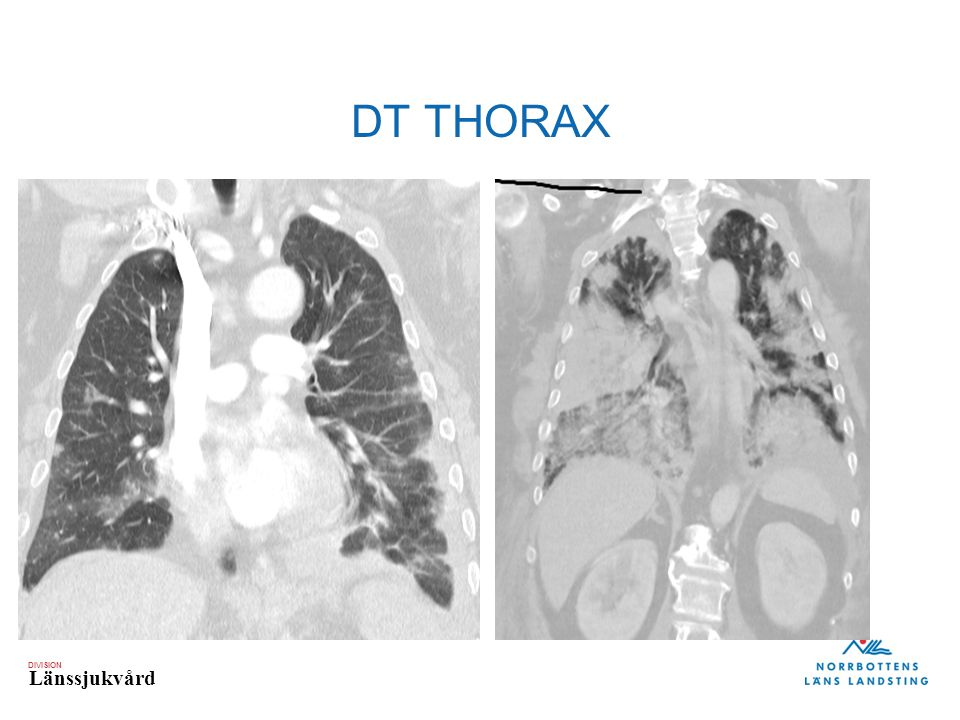 DT THORAX