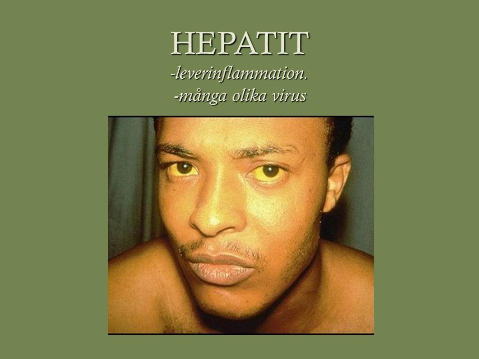 HEPATIT -leverinflammation. -många olika virus