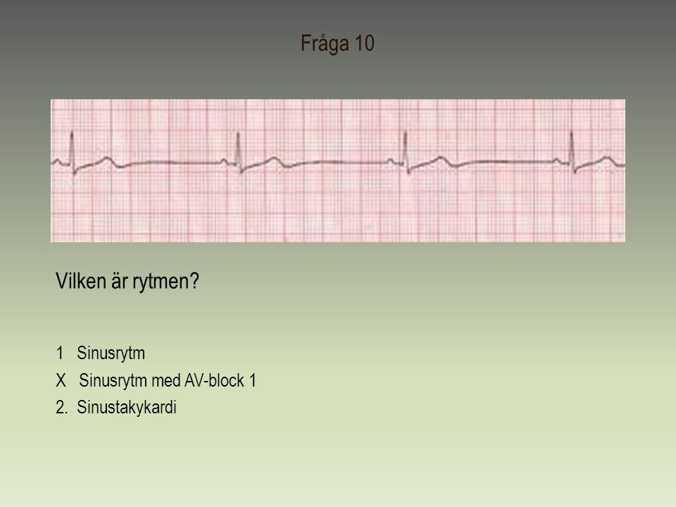 Fråga 10 Vilken är rytmen 1 Sinusrytm X Sinusrytm med AV-block 1