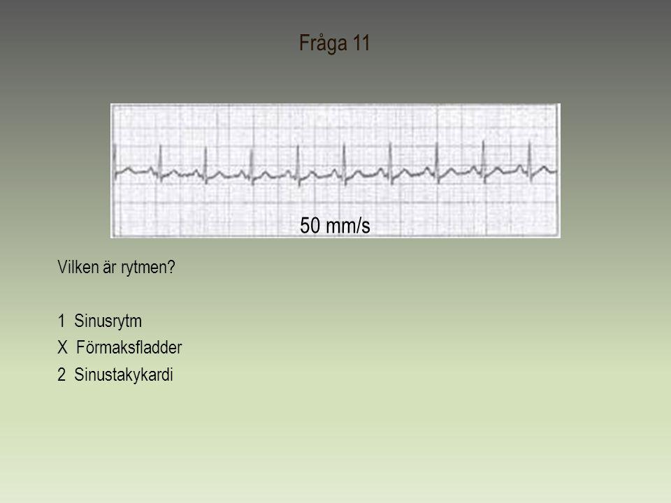 Fråga 11 50 mm/s Vilken är rytmen 1 Sinusrytm X Förmaksfladder