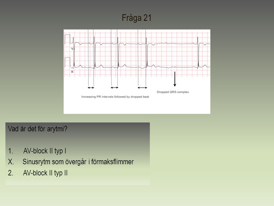 Fråga 21 Vad är det för arytmi AV-block II typ I
