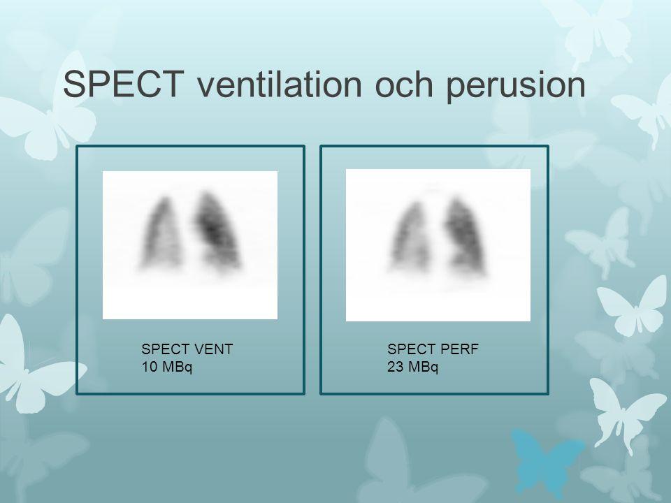 SPECT ventilation och perusion