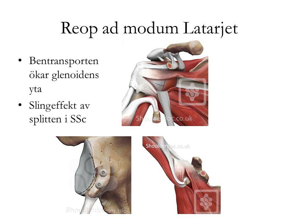 Reop ad modum Latarjet Bentransporten ökar glenoidens yta
