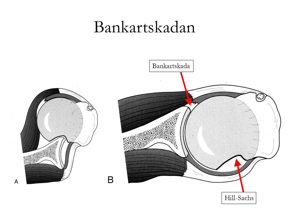 Bankartskadan Bankartskada Hill-Sachs