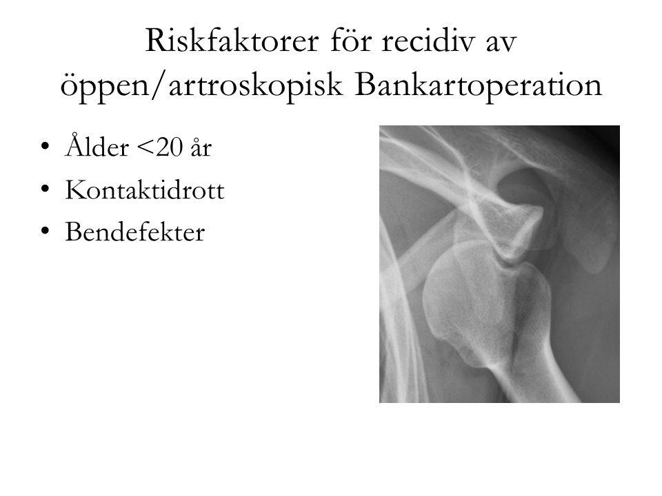 Riskfaktorer för recidiv av öppen/artroskopisk Bankartoperation